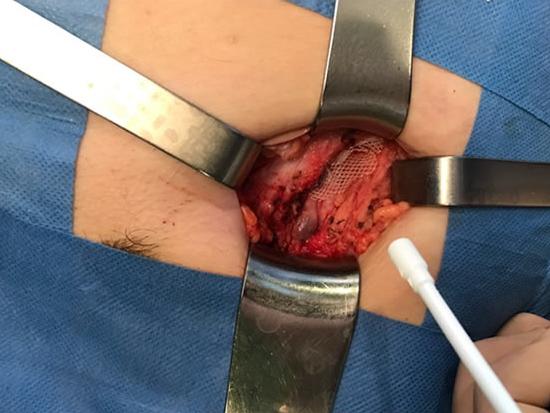 hernia post-inguinal disfunción eréctil